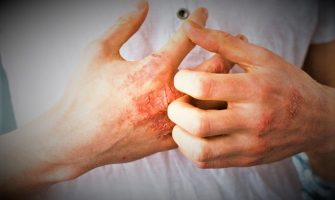 The 5 Most Common Types of Eczema
