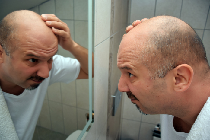 5 Top Hair Loss Prevention Tips